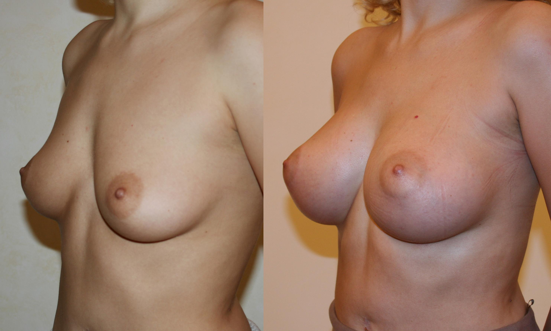 Фото голые груди кормящих мам 28 фотография